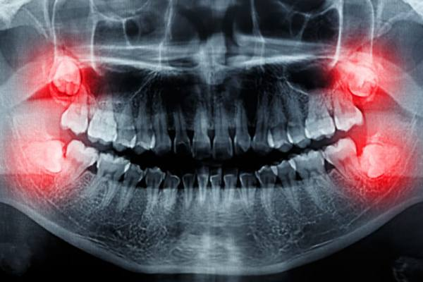 по 2 зуба мудрости снизу и сверху челюсти