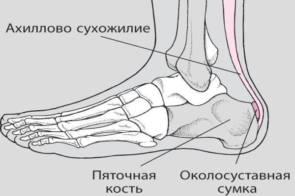 ахиллобурсит где находится на ахилловом сухожилии