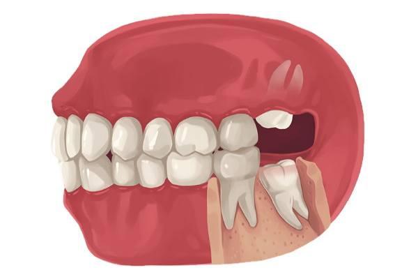 болезненный рост зубов мудрости