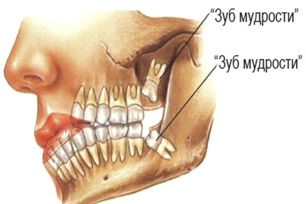 тут находятся зубы мудрости