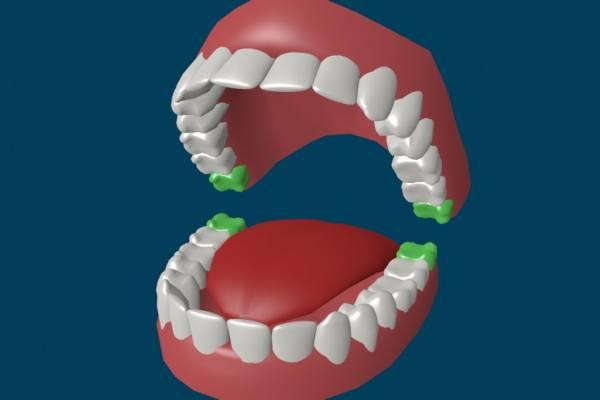 зуб восьмерка находится тут