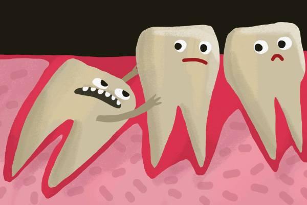 мудрый зуб двигает другие зубы