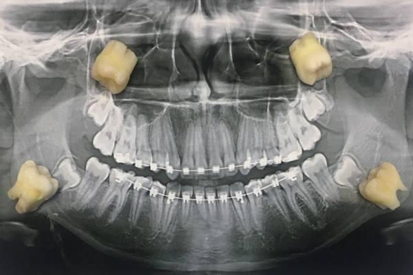 зубы мудрости на рентгене