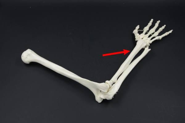 лучевая кость в паре с локтевой