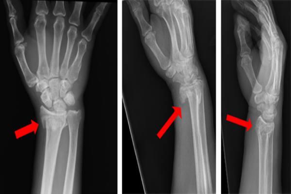 рентген проблем с лучевой костью