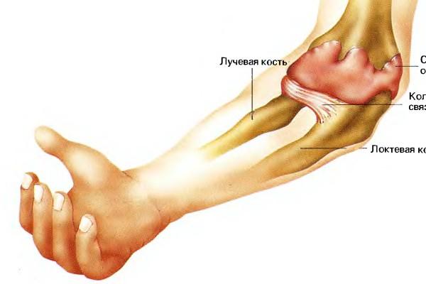 лучевая кость ближе к суставу